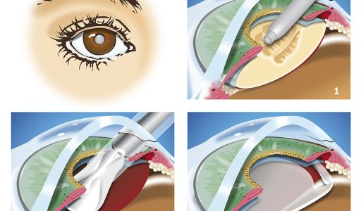 Treatment for Cataracts